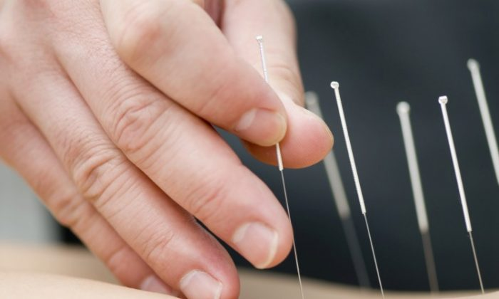 Sometimes releasing old trauma can be the cure for chronic pain, and sometimes all it takes is an intensive series of acupuncture treatments. (Courtesy of Photos.com)