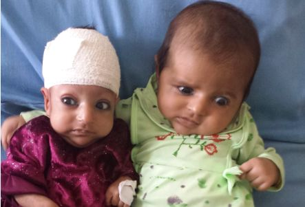 Afghan Baby Born With 2 Heads Survives Operation