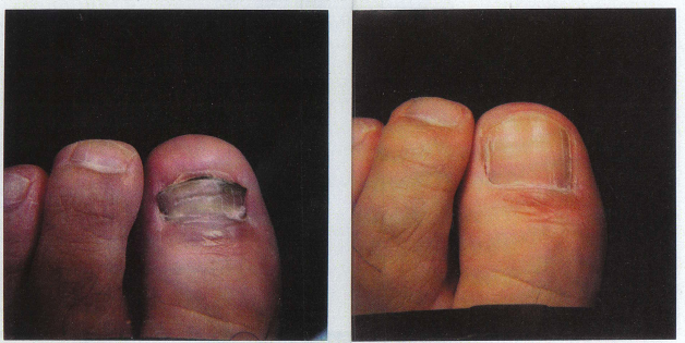 fungal nail infection before and after