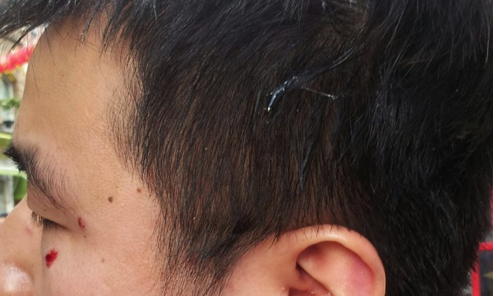 The picture, supplied by Mr Li, shows cuts around his eye caused by the attack and egg on the side of his head
