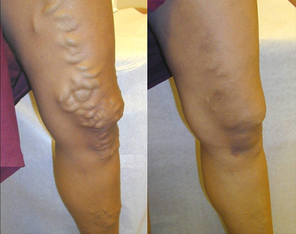 Varicose Veins Dangerous Without Treatment