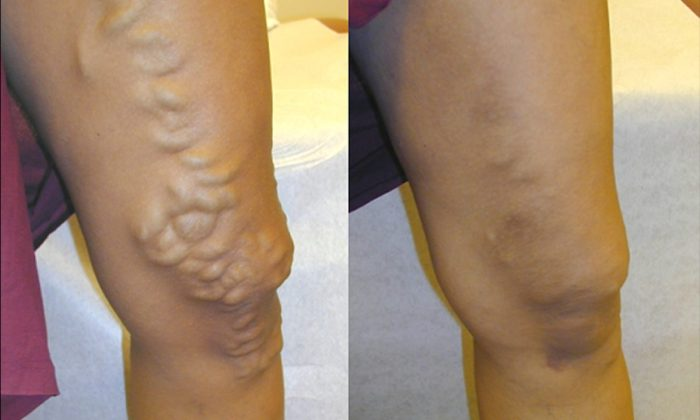 Before and after treatment of varicose veins (Courtesy of New York Vein Center)