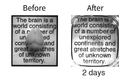 Breakthrough Method Turns Brain Invisible