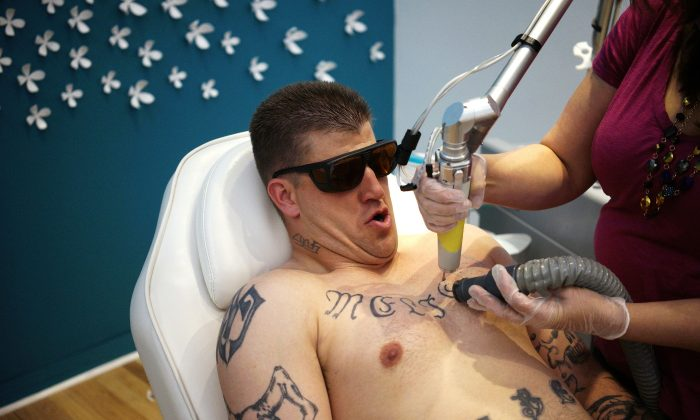 A man has a tattoo of his ex-wife's name removed from his chest at a clinic named What Were You Inking in Denver, Colorado, on April 18, 2014. (REUTERS/Rick Wilking)