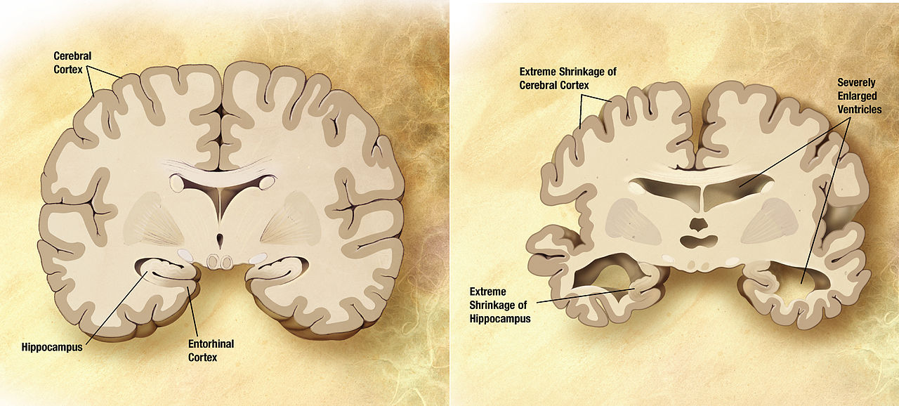 Alzheimer's Diseased Brain