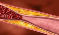 Plaques in Arteries Are Reversible
