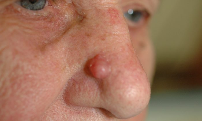 Basal cell skin cancer appears as raised bumps that are pink and waxy. (Courtesy of Dr. Michael Shapiro)