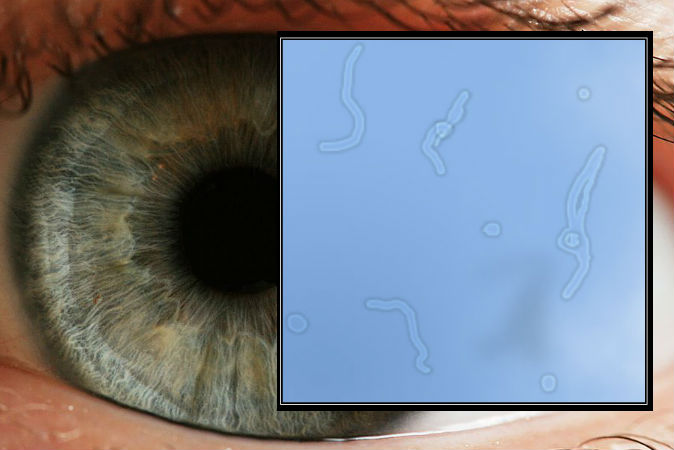 The Eye Floater Phenomenon: Between Science and Spirituality