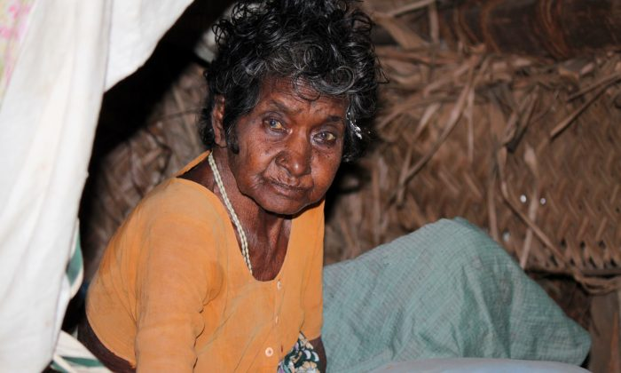 Pacchammal, a terminally-ill patient in her her home in the village of Kuruvinatham, Puducherry on the south east coast of India on Jan. 26, 2015.  (Venus Upadhayaya/Epoch Times)