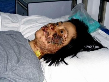 Gao Rongrong was mutilated by electric batons in Longshan Forced Labor Camp in Shenyang City - she later died from torture. (faluninfo.net)