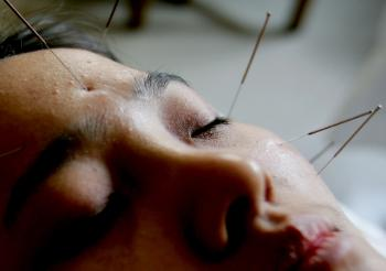 Acupuncture and Chinese Medicine for Mental Health, Part 1