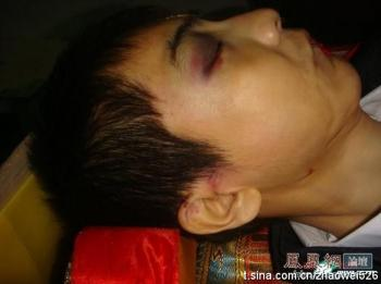 Zhao Wei's corpse in the morgue in funerary vestments. A coin is in his mouth with a red string protruding, part of Chinese funerary traditions. The images, taken by the parents and distributed online, have triggered enormous indignation with the authorities. (Courtesy of victim's family)