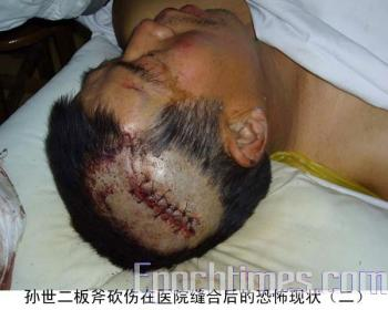 The family head SunSier (the father of the deceased victim) was injured with an axe. (The Epoch Times)
