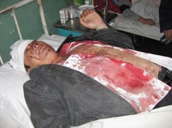 A hospitalize villager severely injured after hired thugs beat him.  (Local villager)