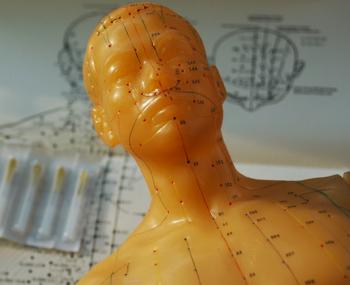 Acupuncture and Science Intertwined