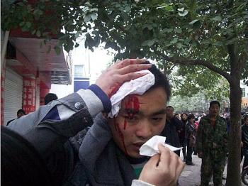 A beaten protester Photo provided by mainland China Internet surfer (Photo provided by mainland China Internet surfer)