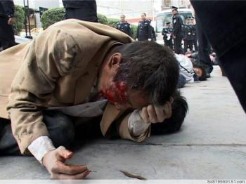 People lying on the ground after suffering a beating by the police. (Provided by mainland China Internet users)