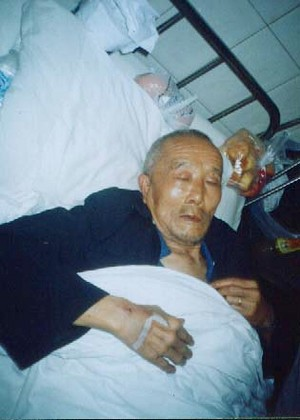 The injured 80-year-old farmer (The Epoch Times)