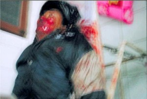 A villager wounded in the shooting in Shanwei, China. (The Epoch Times)