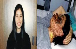 Gao Rongrong's photo before her death. The right photo was taken 10 days after her disfiguration. Minghui.net)