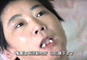 Police and felons pried Li Ping's mouth open during force-feeding. Several teeth were uprooted. (The Epoch Times)