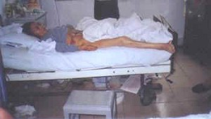 Ren Chuanlan was reduced to skin and bones and died due to complications from illegal medical experiments.