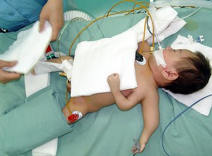 Baby Jie Jie before his operation to remove the inner left arm. (Getty Images)