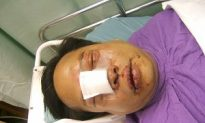 Prominent Hong Kong Democrat Attacked After Protest