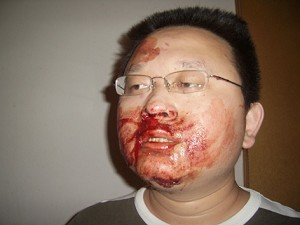 Chinese State Security Agent Beats Independent Candidate