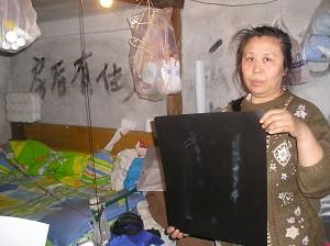 Li shows evidence of the violence, x-ray films of her broken bones. (Yodo Soma)