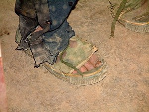 These are the feet of a child who climbs in the mountains and crosses rivers every day for more than two hours, even in the heavy snows of winter, to reach school. (Ben Ben)
