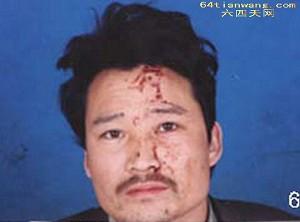 Xia received severe beatings on February 27. (64Tianwang.com)