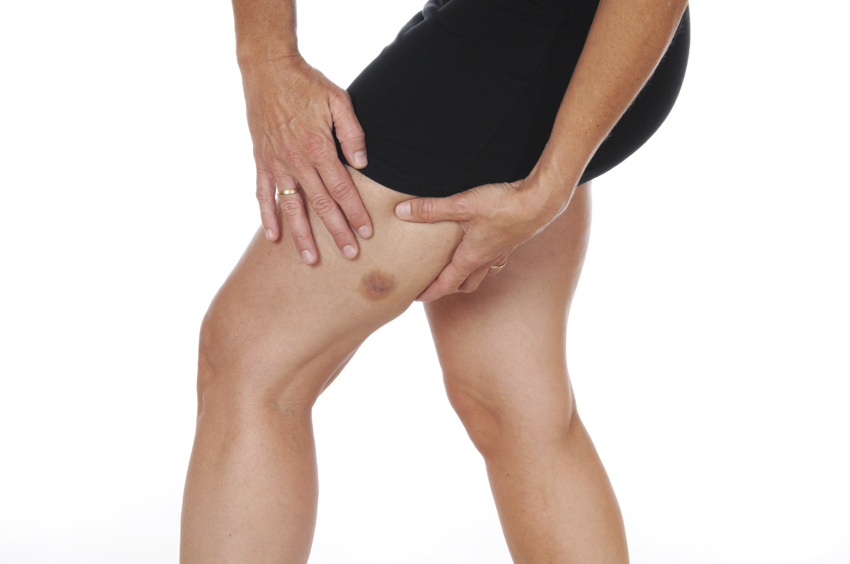 Fracture or Bone Bruise? How to Tell