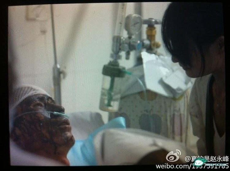 Duan, a peddler, beaten for a chivalrous assist in Kunming, China. (Posted to Weibo.com)