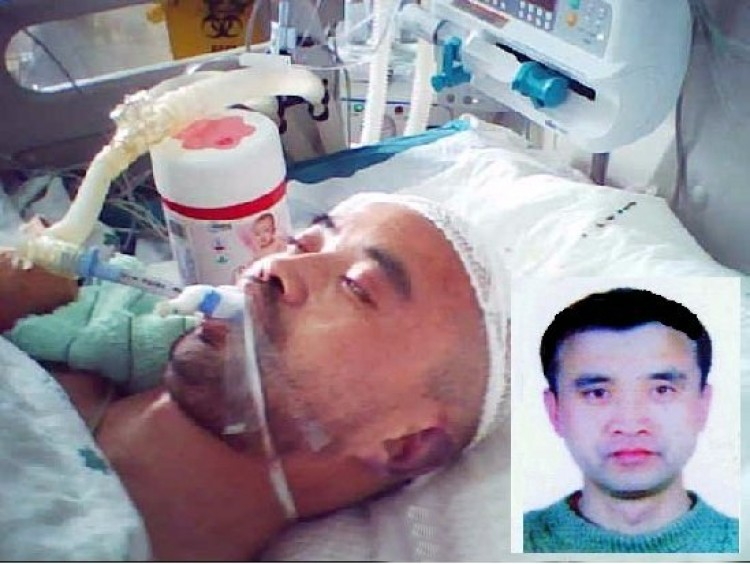 HOSPITALIZED: Mr. Yu Yungang, 48, lying unconscious in the intensive care unit of a hospital after a round of intense torture lead to skull damage. Hospital staff was unable to save him, and he died soon after this photograph was taken. (Falun Dafa Information Center)