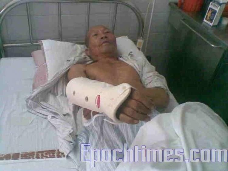 A severely injured villager. (The Epoch Times)