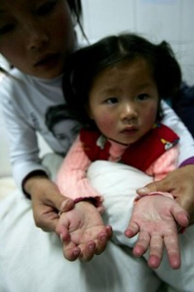A young child's hands show a rash typical of Hand, Foot, and Mouth Disease. (AFP/Getty Images)