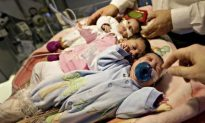 Youngest Ever Conjoined Twins Separated by Swiss Doctors at 8 Days Old