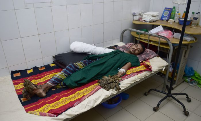 Bangladeshi man Abdul Bajander rests a day after a surgery at Dhaka Medical College Hospital in Dhaka on Feb. 21, 2016. A Bangladeshi man dubbed tree man due to large bark-like warts growing on his hands and feet underwent successful surgery on Feb. 20 to remove some of the growths. (Munir uz Zaman/AFP/Getty Images)