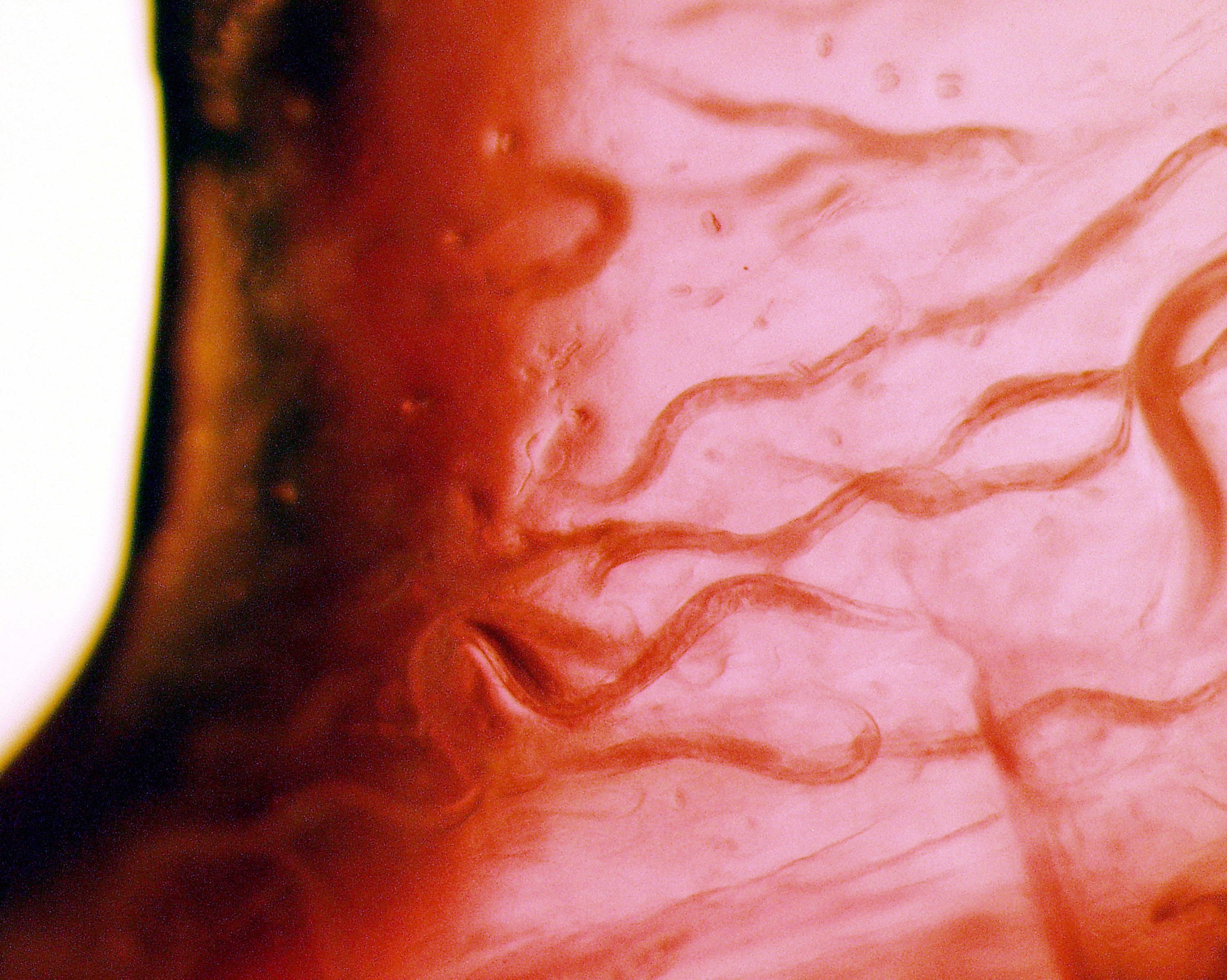 Top 4 Ways You Could Get a Parasite Infection