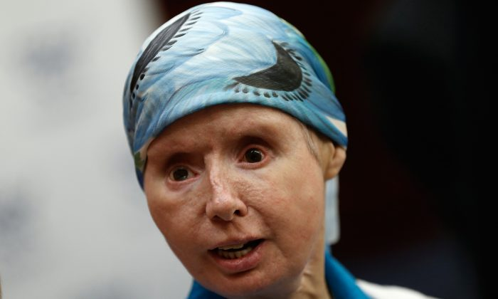 Charla Nash, the victim of a mauling by a pet chimp in Connecticut in 2009 and who underwent a face transplant, speaks at a press conference July 10, 2014 on Capitol Hill in Washington, DC. (Photo by Win McNamee/Getty Images)