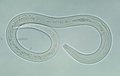 A hookworm (Fernand Olive/Public Domain)