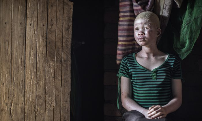 Catherine Amidu , a 12-year-old Malawian albino girl, sits in her home, in the traditional authority area of Nkole, Machinga district, on April 17, 2015. (Gianluigi Guercia/AFP/Getty Images)