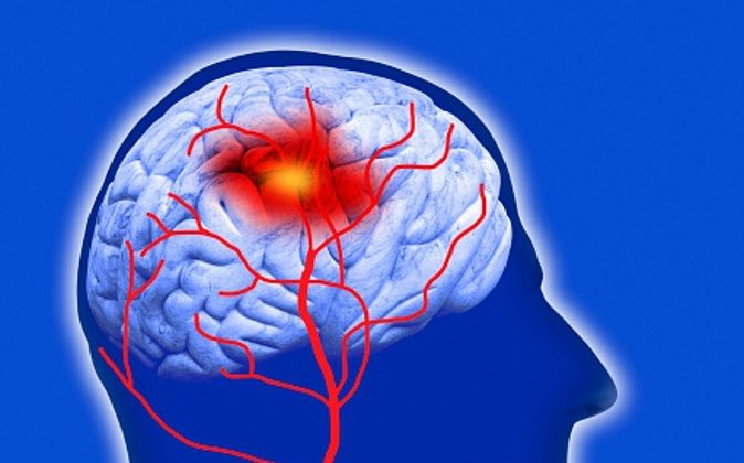 (Human brain showing stroke, computer artwork/Getty Images)