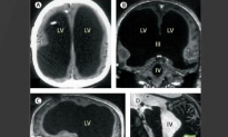 Case of Man Missing 90% of Brain but Functioning Normally Stuns Scientists (Video)