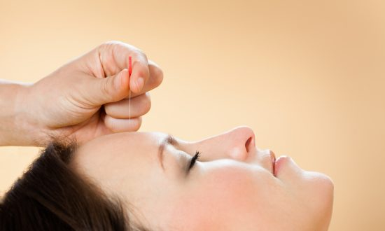 Anxious? Acupuncture Can Help