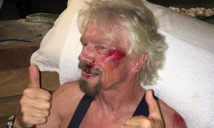 Richard Branson posted an image of his bloodied face after a bike accident in the British Virgini Islands (Virgin)