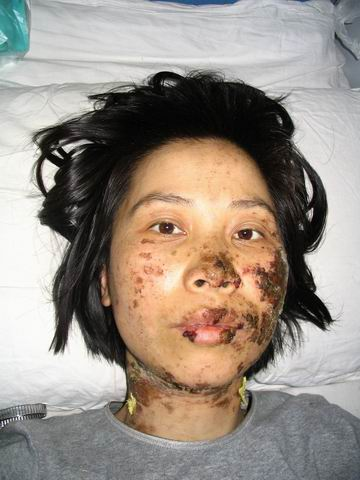 Falun Gong Practitioner Gao Rongrong after torture by Chinese police. Rongrong died in custody on 16 June 2005. (Public Domain)