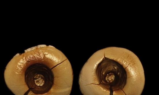 13,000-Year-Old Teeth Reveal Dental Fillings Were Torture Back Then (Video)