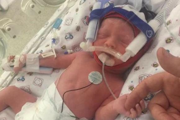Eleanor Petrak (Image courtesy https://www.gofundme.com/new-family-face-unthinkable-tragedy)